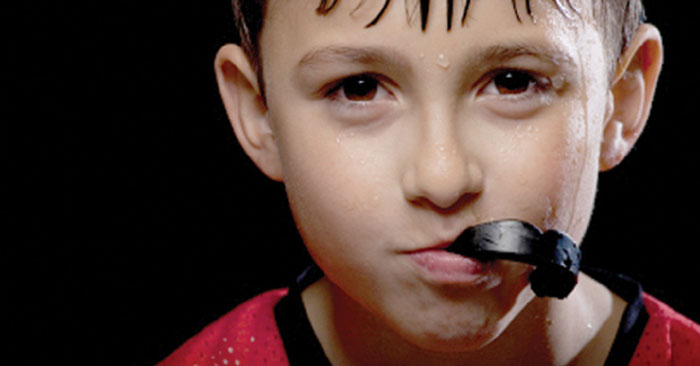 Why is a custom sports mouth guard important?
