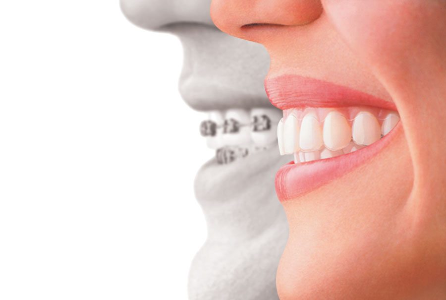 Incredible Results – Invisalign at Waterloo Smiles