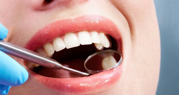 Open mouth fillings