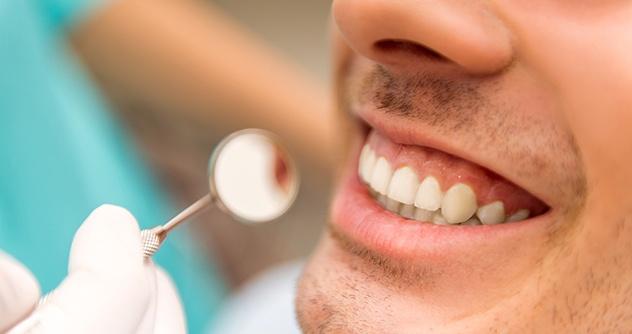 How Do I Take Care Of My Dental Implants?