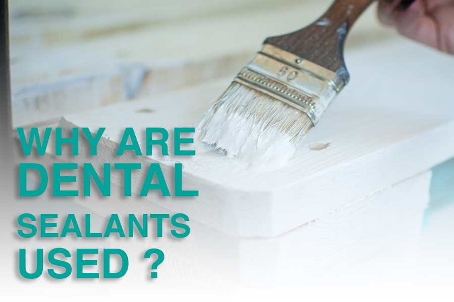 Why are Dental Sealants used when I visit the dentist