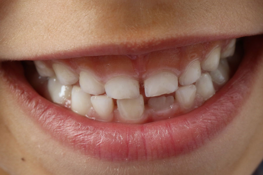 Why Having a Family Dentist is Important?