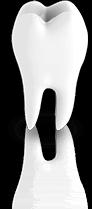 Dentist Tool