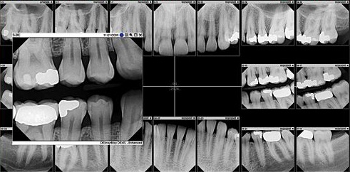 Dental X-Rays vs. Digital Radiography What Are the Benefits?