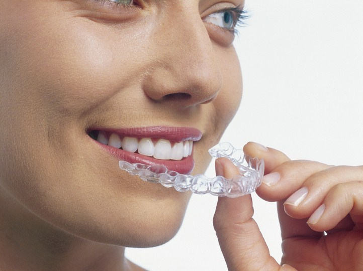Is Invisalign Really Better: 10 Facts to Help You Decide