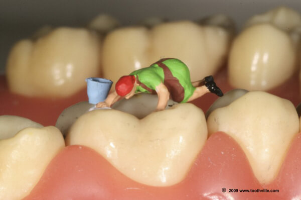 What You Should Know About Dental Fillings