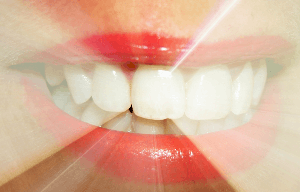 Information about cosmetic dentists in Waterloo
