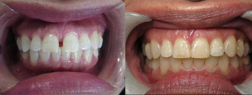 Before & After Invisalign