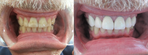 Before and After Upper Crowns