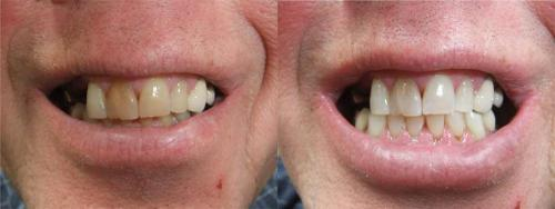 Discolouration - After ZOOM Whitening