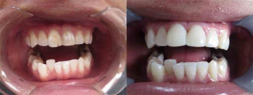 Composite bonding on two front teeth