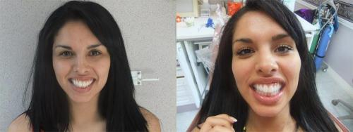 After ZOOM! Whitening