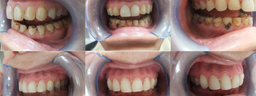 Before-After-White Fillings