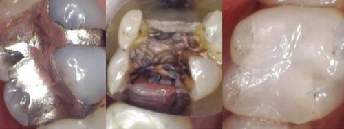 Original silver filling - Removal - After with white filling