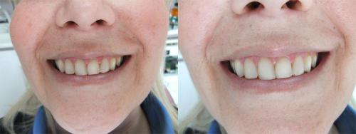 Before whitening - After take home whitening