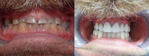 Before & After crowns - full rehab