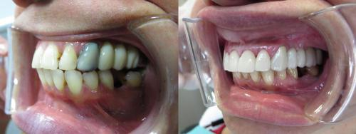 Upper Rehab 4 front Veneers the rest are Crowns